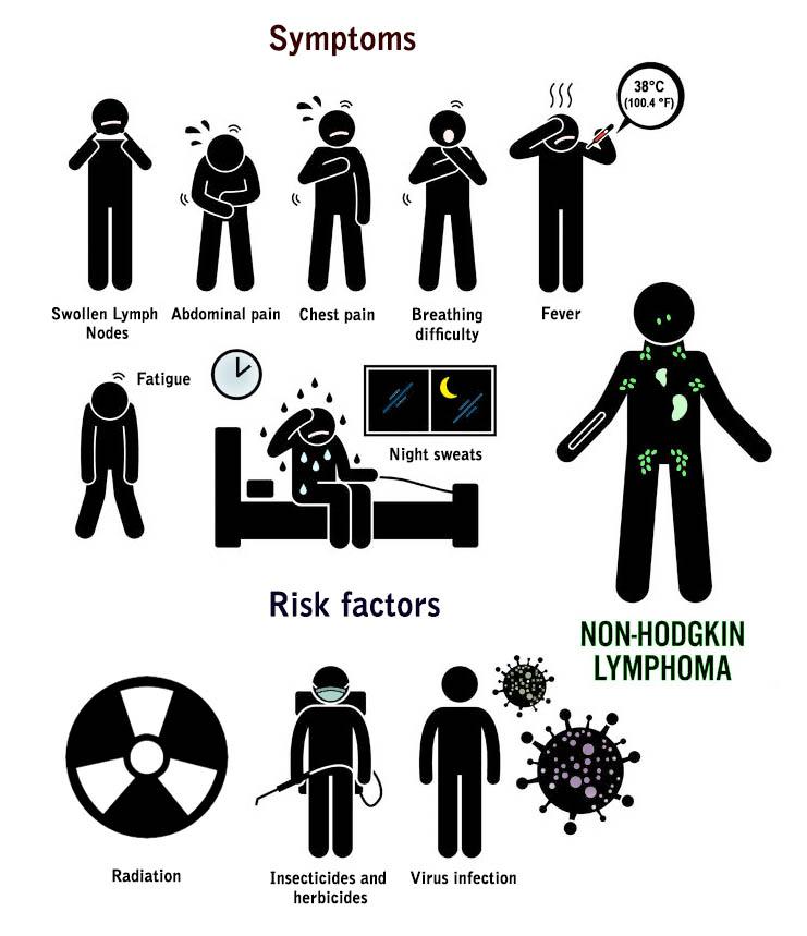 Non-Hodgkin Lymphoma symphoms and risk factors I DCA and Cancer